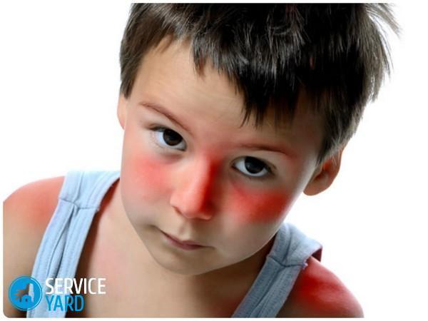 Красные пятна у ребенка, ServiceYard-уют вашего дома в Ваших руках