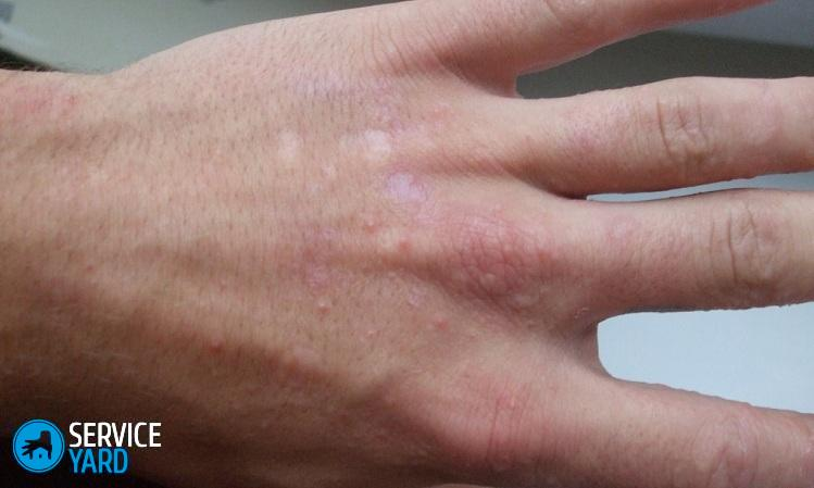 Пузырьки под кожей на пальцах рук