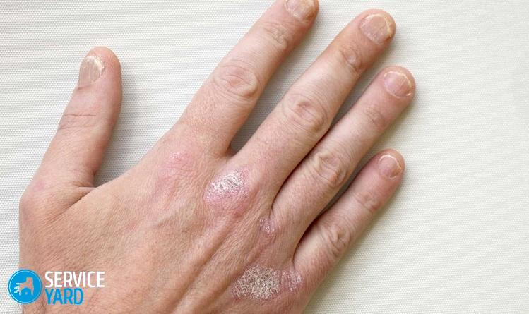 Сохнет кожа между пальцами рук что это 10