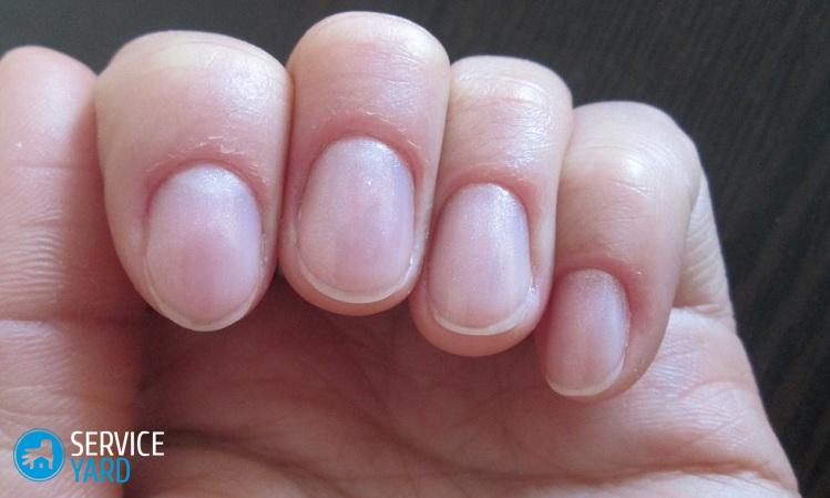 Сухая или грубая кожа вокруг ногтей: почему сохнет, как смягчить