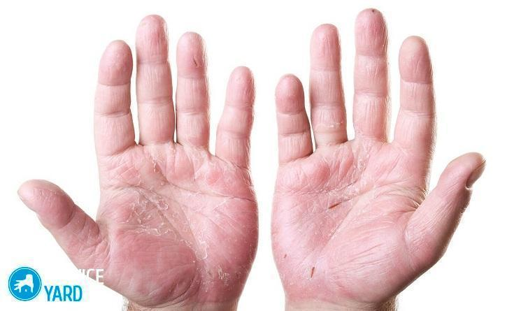 Очень сухая кожа рук и ног это 19